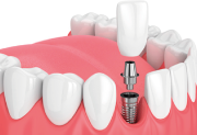 evolution-dental-dental-implants